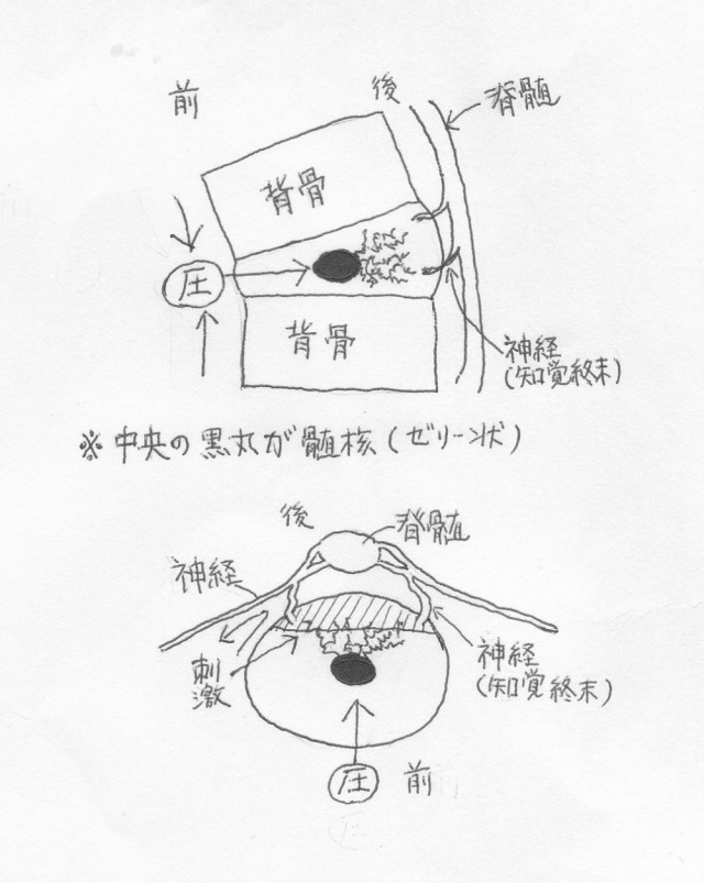 椎間板変性発生イメージ