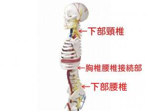 椎間板変性骨格